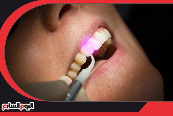 الليزر-لتبييض-الاسنان-3