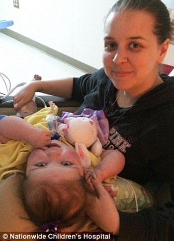 طفلة أمريكية تحارب المرض بـ12 عملية جراحية (2)