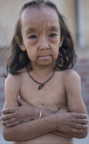 طفلان-فى-الهند-أصيبا-بمرض-نادر-(1)