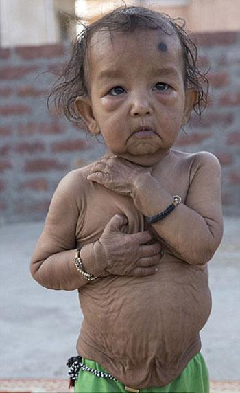 طفلان-فى-الهند-أصيبا-بمرض-نادر-(2)