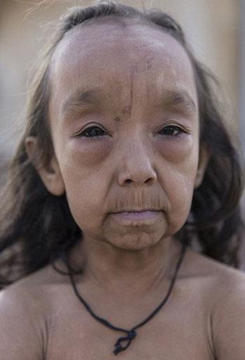 طفلان-فى-الهند-أصيبا-بمرض-نادر-(3)