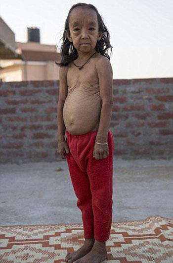 طفلان-فى-الهند-أصيبا-بمرض-نادر-(5)