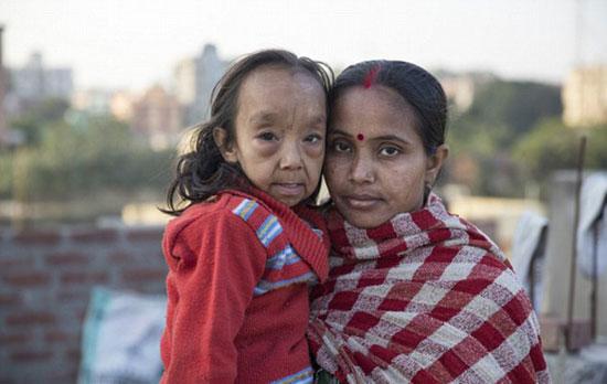 طفلان-فى-الهند-أصيبا-بمرض-نادر-(6)
