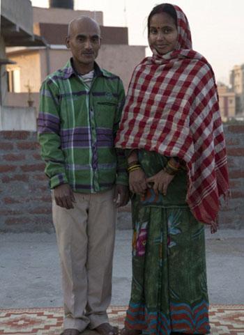 طفلان-فى-الهند-أصيبا-بمرض-نادر-(7)