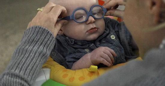 اخبار الصحة، صحه، الصحه، مشكلات العين، اضطراب الابصار فى العين، ضعف النظر للاطفال (2)