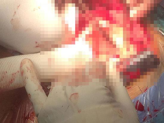 إجراء جراحة تغيير للشريان الأورطى الصاعد قبل انفجاره لطفلة 12 عاما (2)