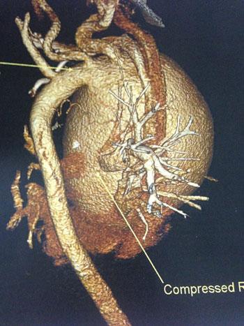 إجراء جراحة تغيير للشريان الأورطى الصاعد قبل انفجاره لطفلة 12 عاما (10)