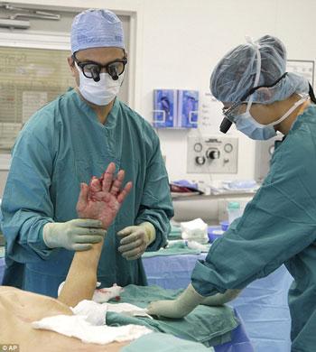 زرع الجزء التالف من يد المريض فى بطنه، لمساعدته على التعافى -اليوم السابع -9 -2015