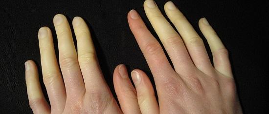 احمرار وزرقان اليد من مضاعفات الصدفية
