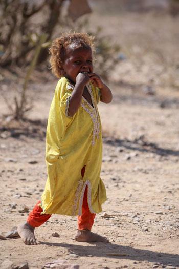 بكاء طفلة فى مخيم تعز