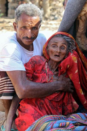 سيدة فى تعز اليمنية وآثار المجاعة ظاهرة عليها