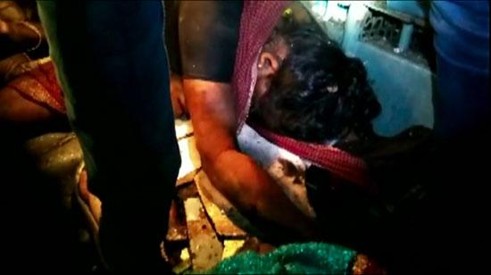 أحد المصابين بعد خروج قطار عن القضبان فى الهند