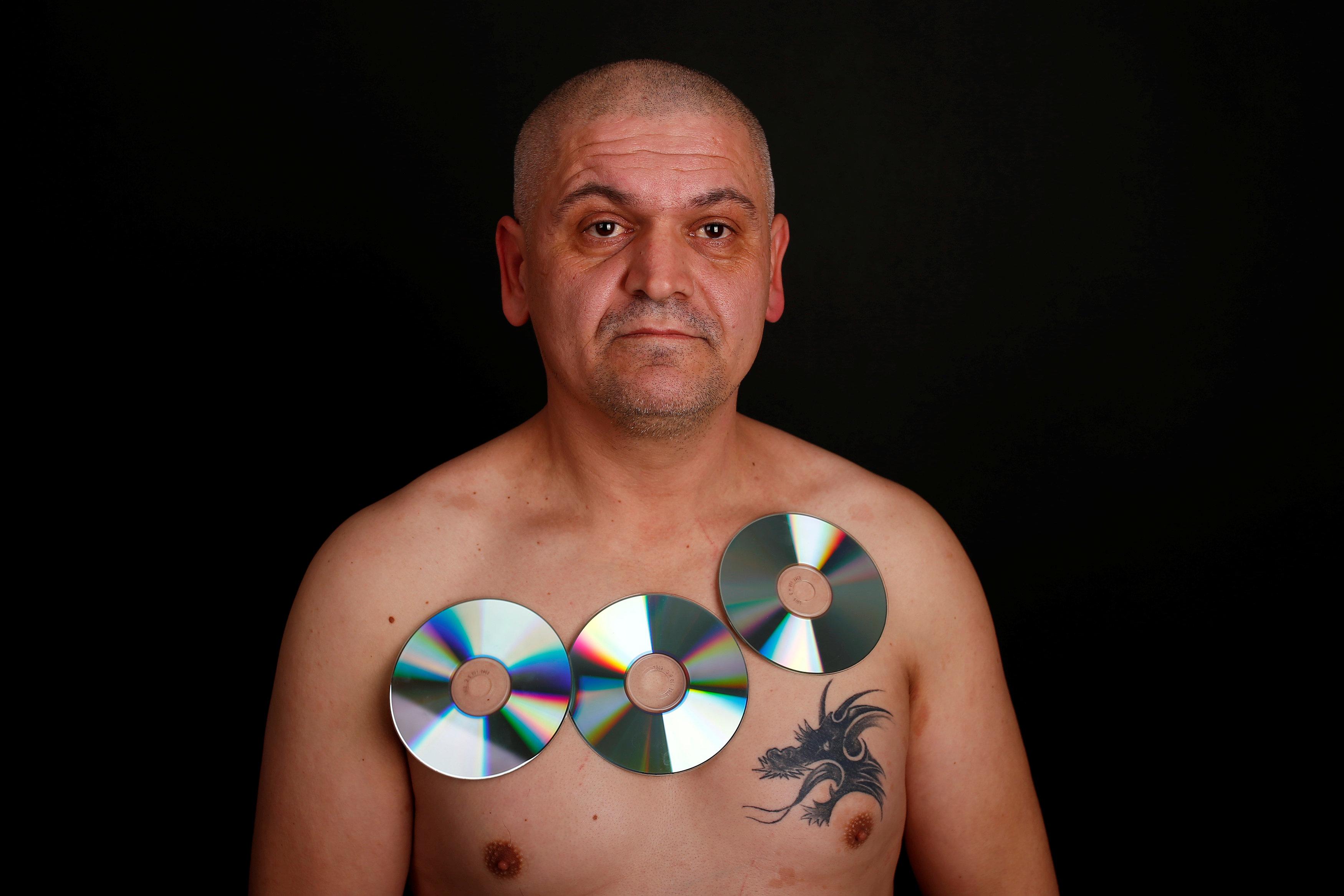 """9b8f5ebe03dd3 """"صدق أو لا تصدق"""" بالصور.. شخص يمتلك قدرات غريبة تجعل جسده كالمغناطيس  الثلاثاء"""