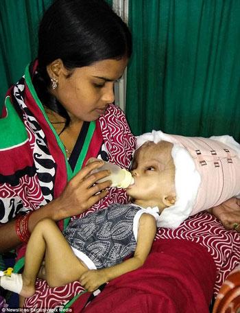 نجاح عملية تصغير أكبر رأس طفل بالعالم (2)