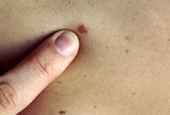 PRinc_photo_of_skin_cancer_screening