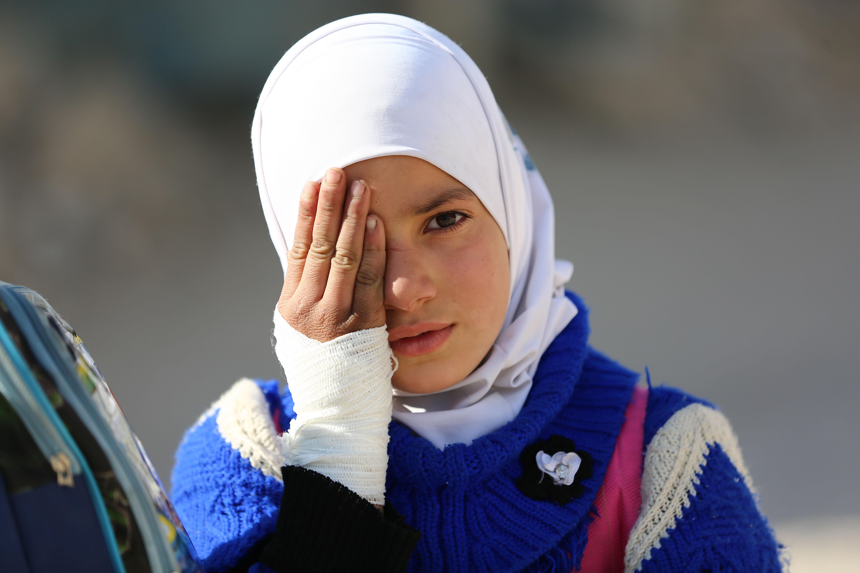 طفلة سورية تتضامن مع طفل فقد عينه