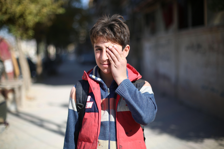 طفل سورى يتضامن مع طفل فقد عينه