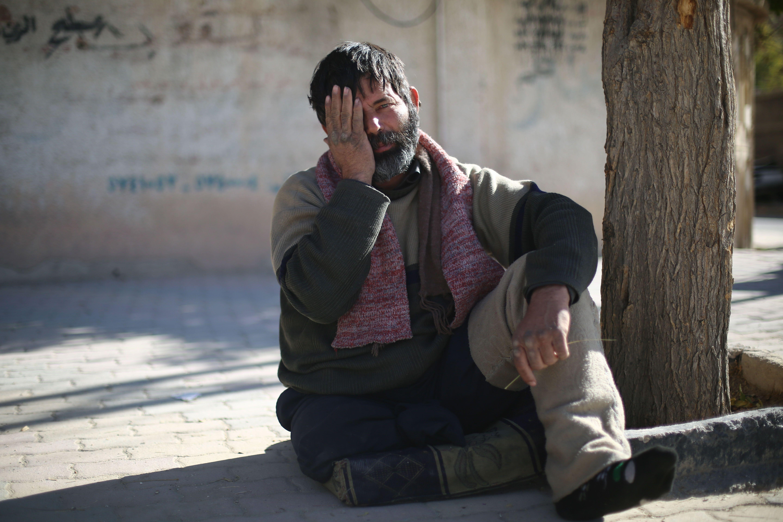 رجل سورى يتضامن مع الطفل الذى فقد عينه فى الغوطة