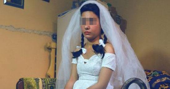 زواج القاصرات (1)