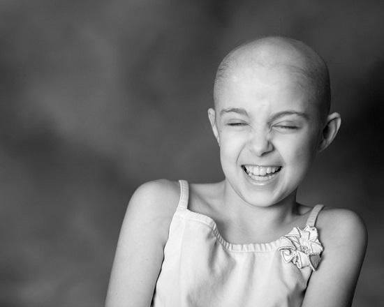 سرطان الطفولة يسرق ضحكة الاطفال