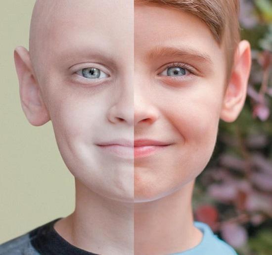 سرطان اللوكيميا