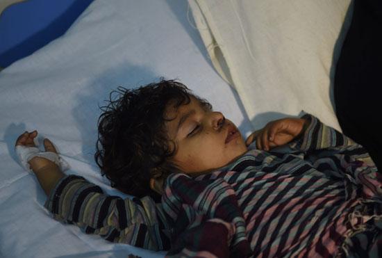 طفل مصاب جراء الانفجار