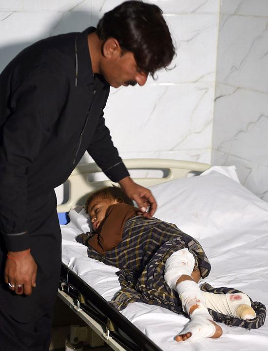 طفل اصيب جراء الانفجار الدموى