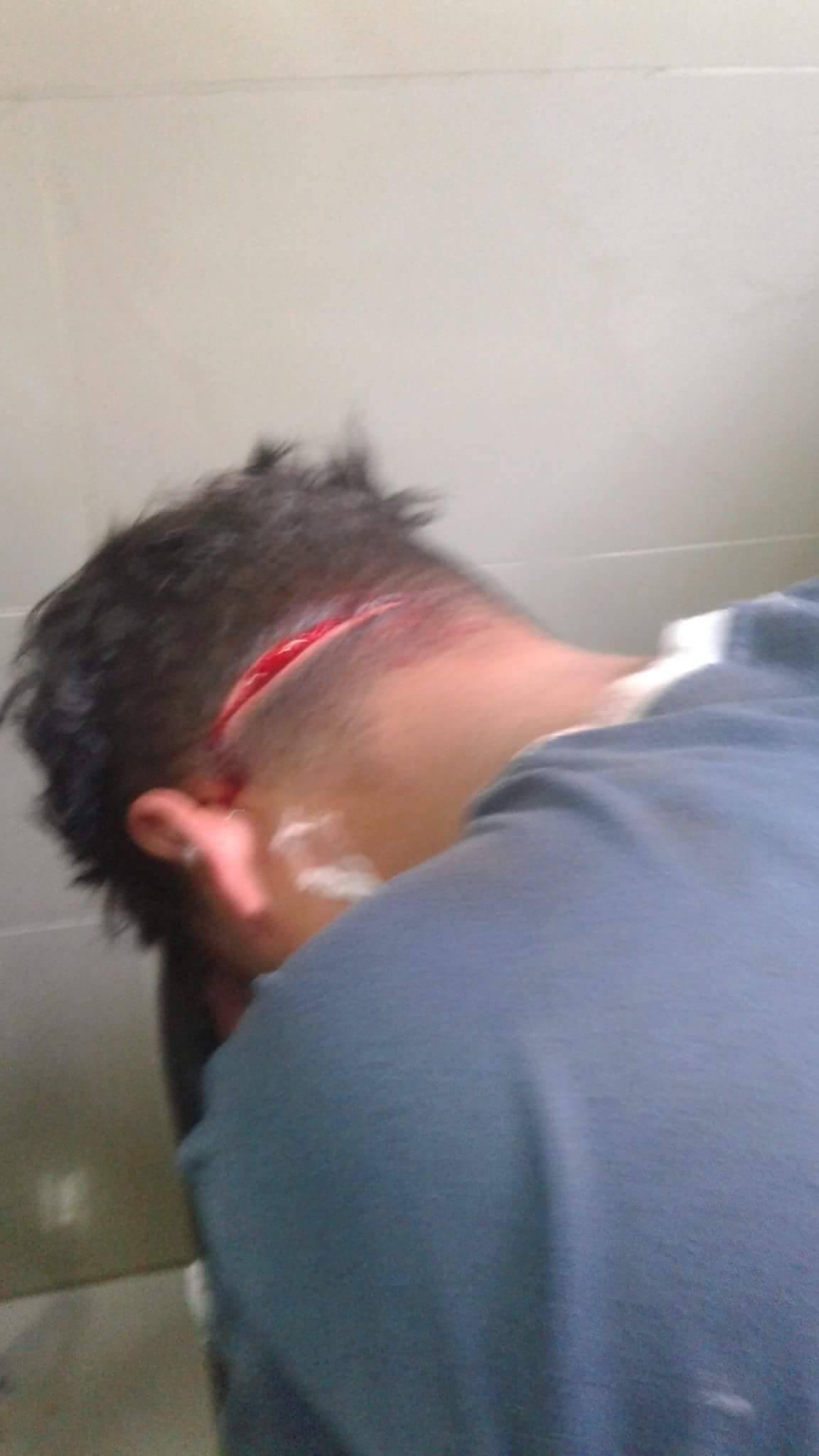 إصابة الطالب