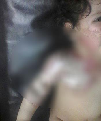 طفل المرج واثار التعذيب عليه
