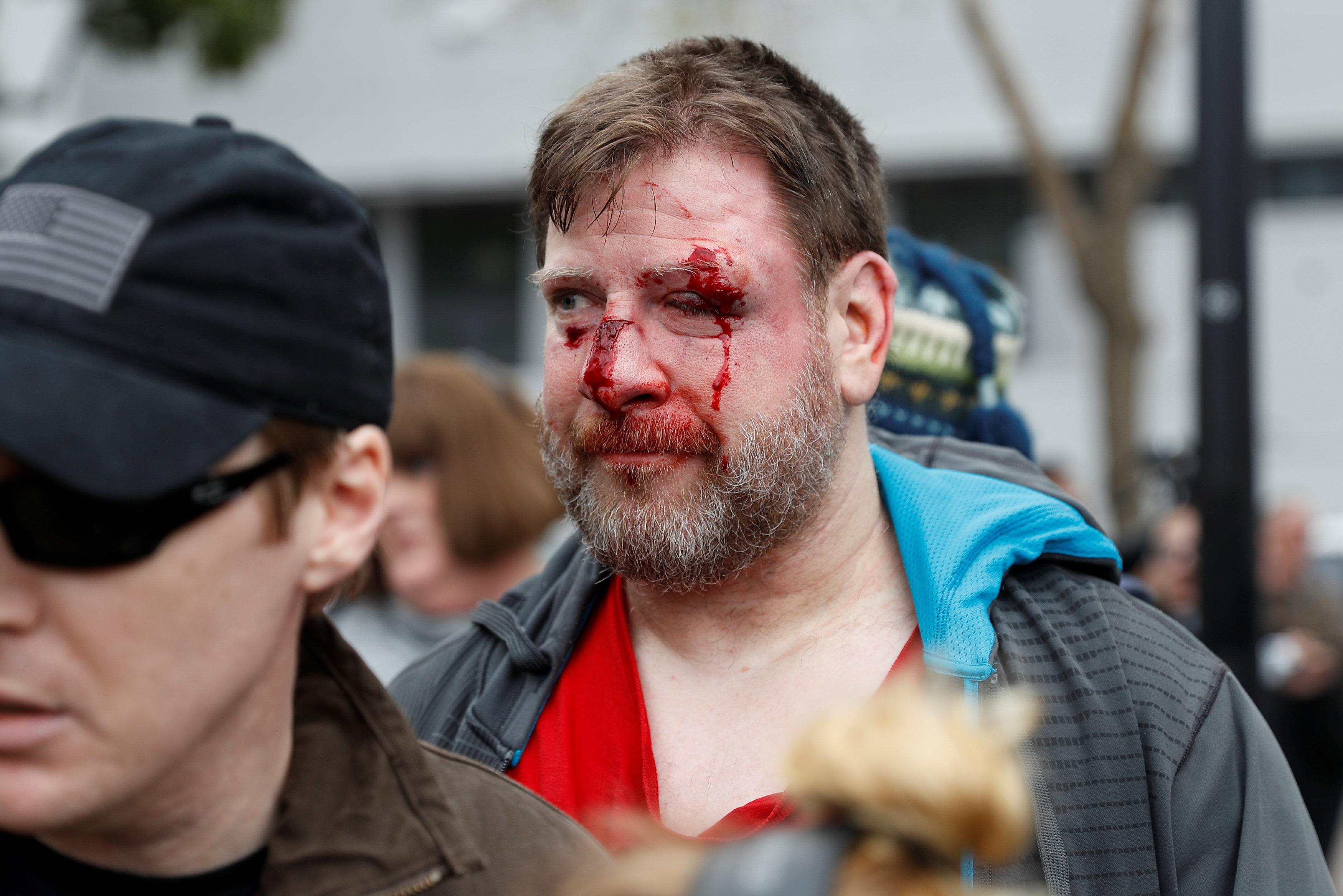 إصابة أحد المتظاهرين عقب الاعتداء عليه من مؤيدى ترامب