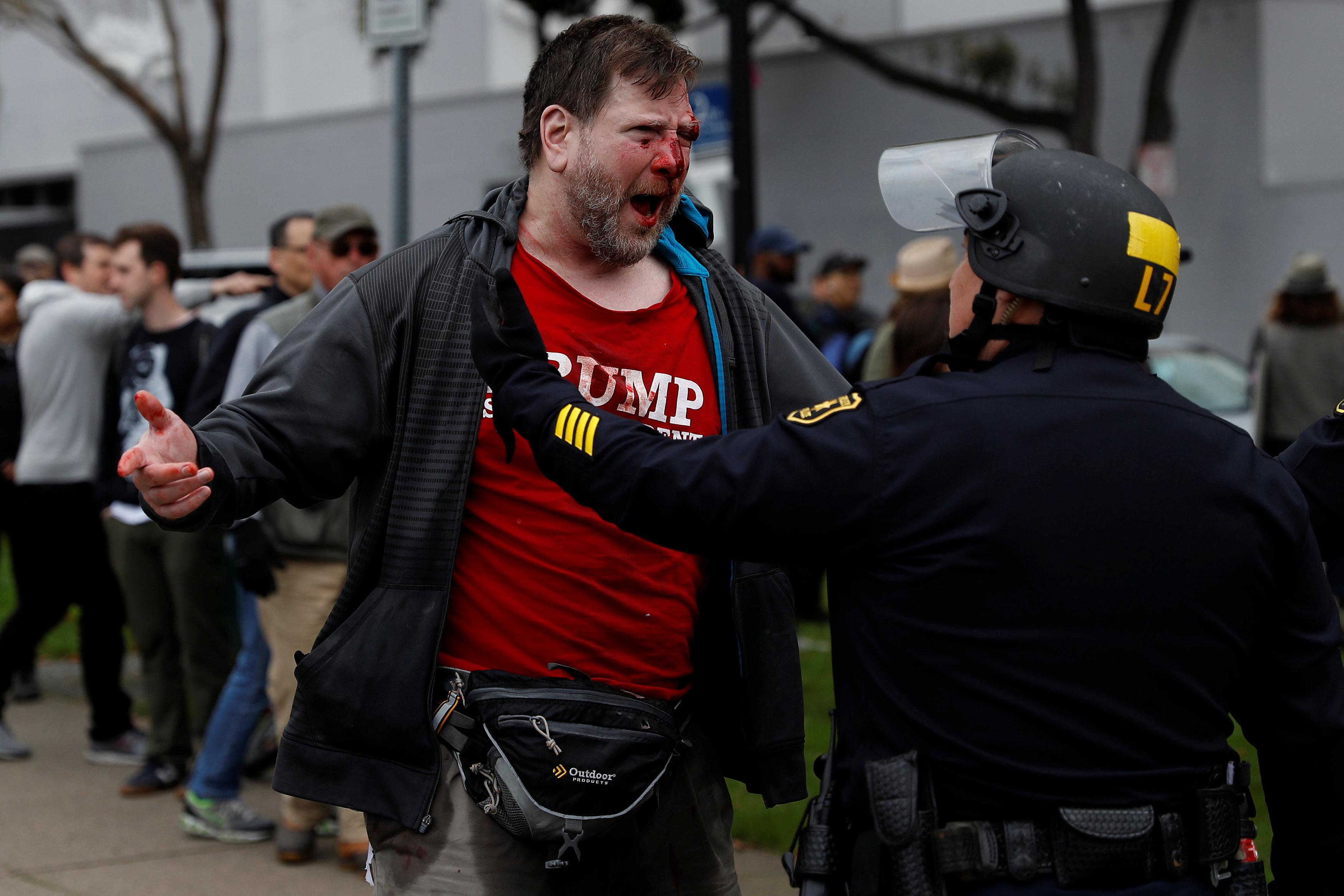 أحد المتظاهرين عقب اصابته فى حالة غضب