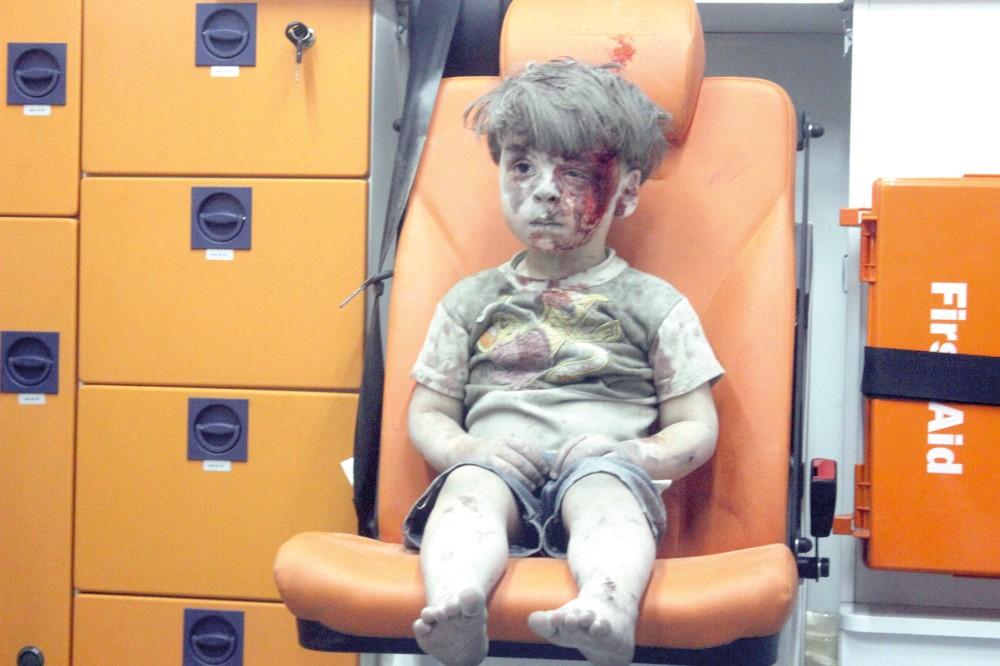 الطفل السورى عمران