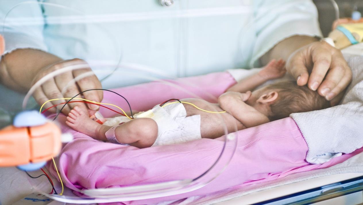 اطفال خدج نتيجة الولادة المبكرة