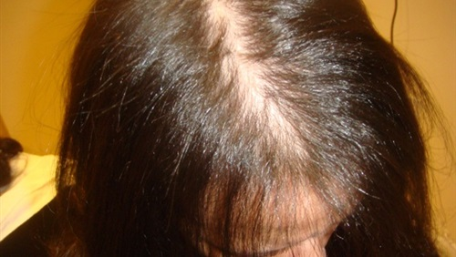 خلل الغدد الدرقية يؤثر على الشعر