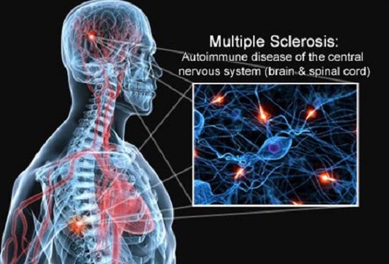 اعراض التصلب المتعدد Ms اليوم السابع
