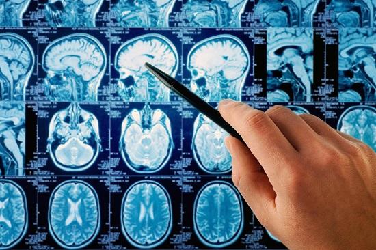 اعراض سرطان المخ
