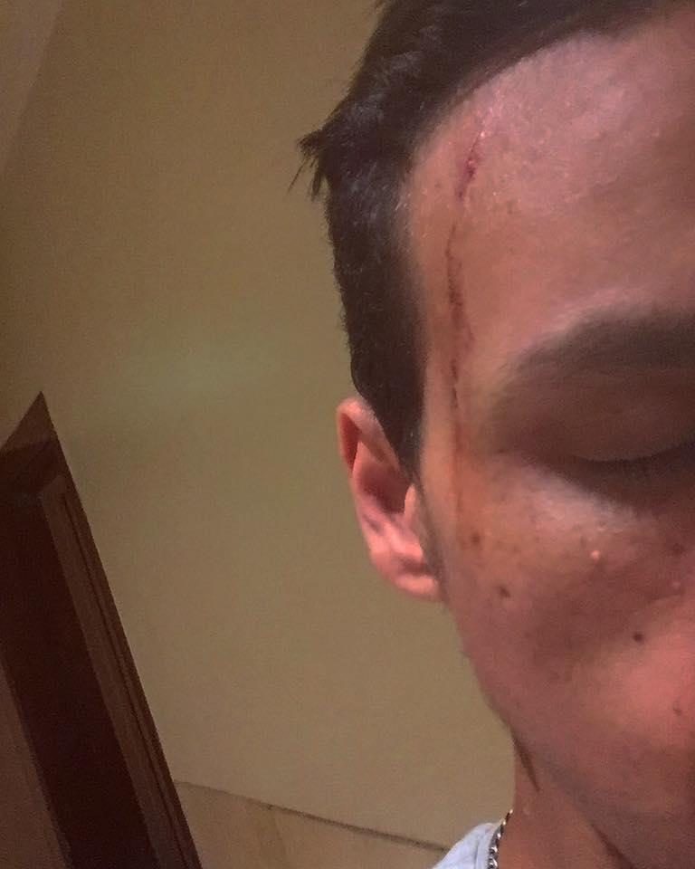 الشاب بعد تعرضه للضرب