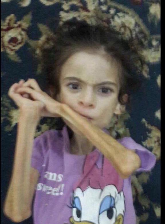 الطفلة التى إصيب بمتلازمة ريت