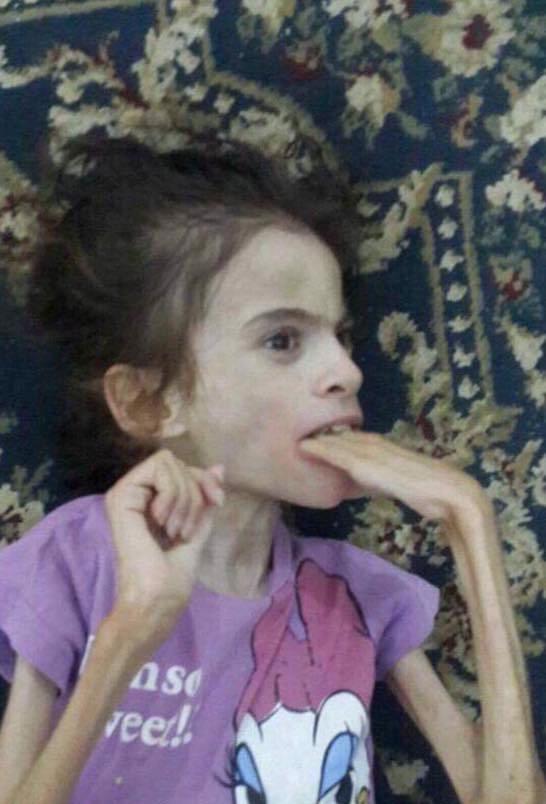 الطفلة بعد إصابتها بالمرض
