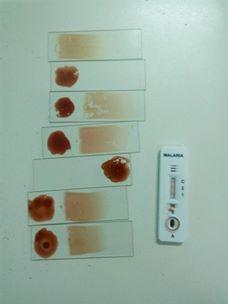 سحب عينات م من حالة ملاريا بنى سويف (2)