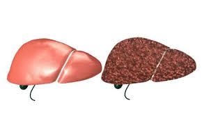 التهاب الكبد الوبائى C