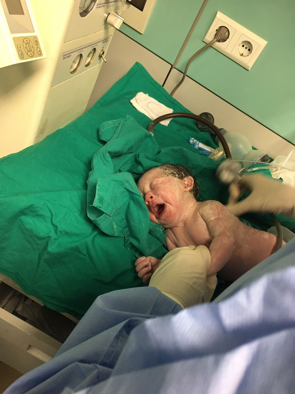 الطفلة بعد الولادة مباشرة
