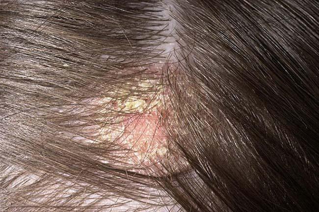 تشوه محلي البصر علاج القشرة عند الرجال Alterazioni Org