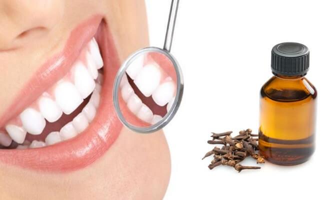 زيت القرنفل لعلاج ألم الأسنان