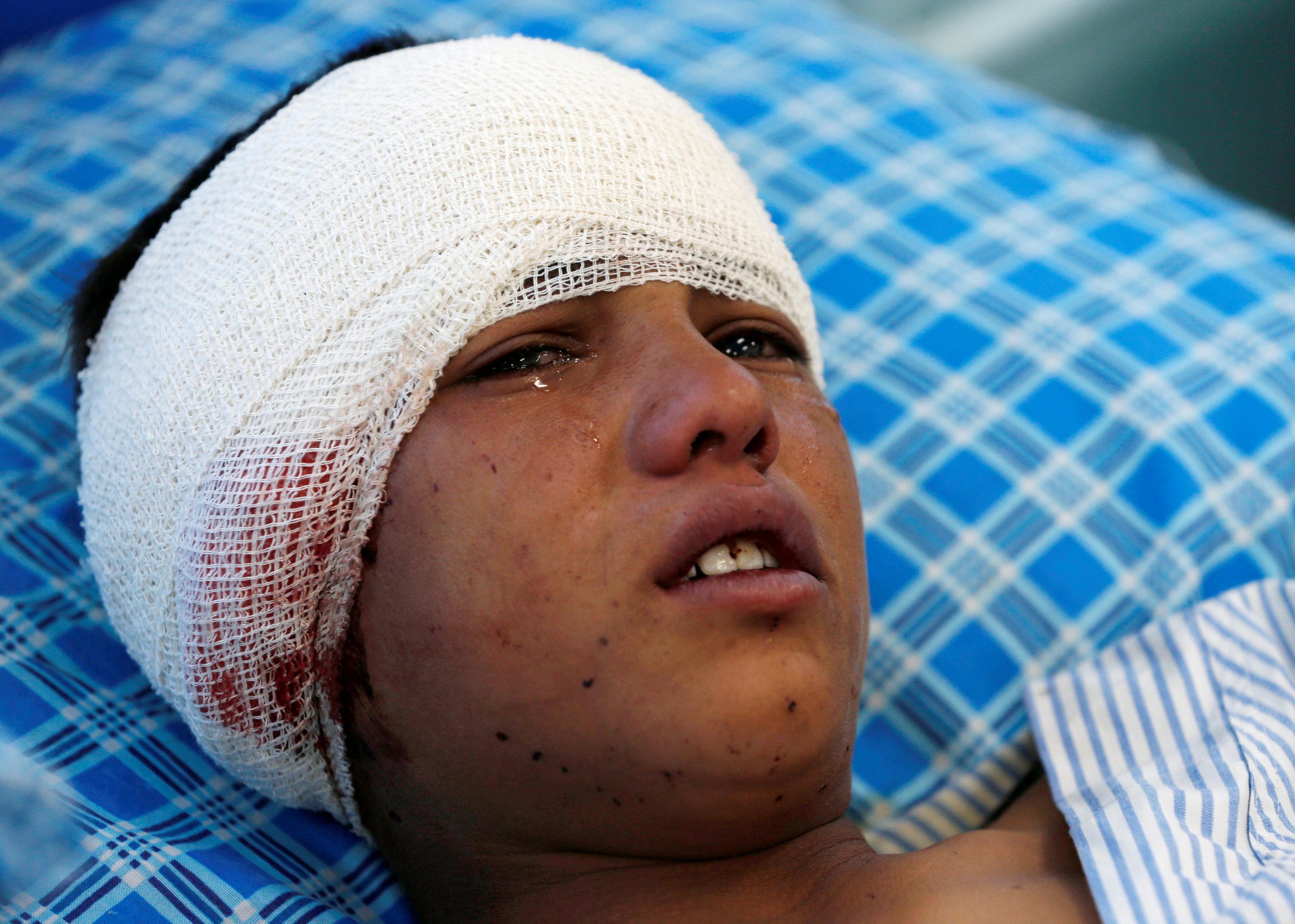 مصاب في تفجيرات كابول