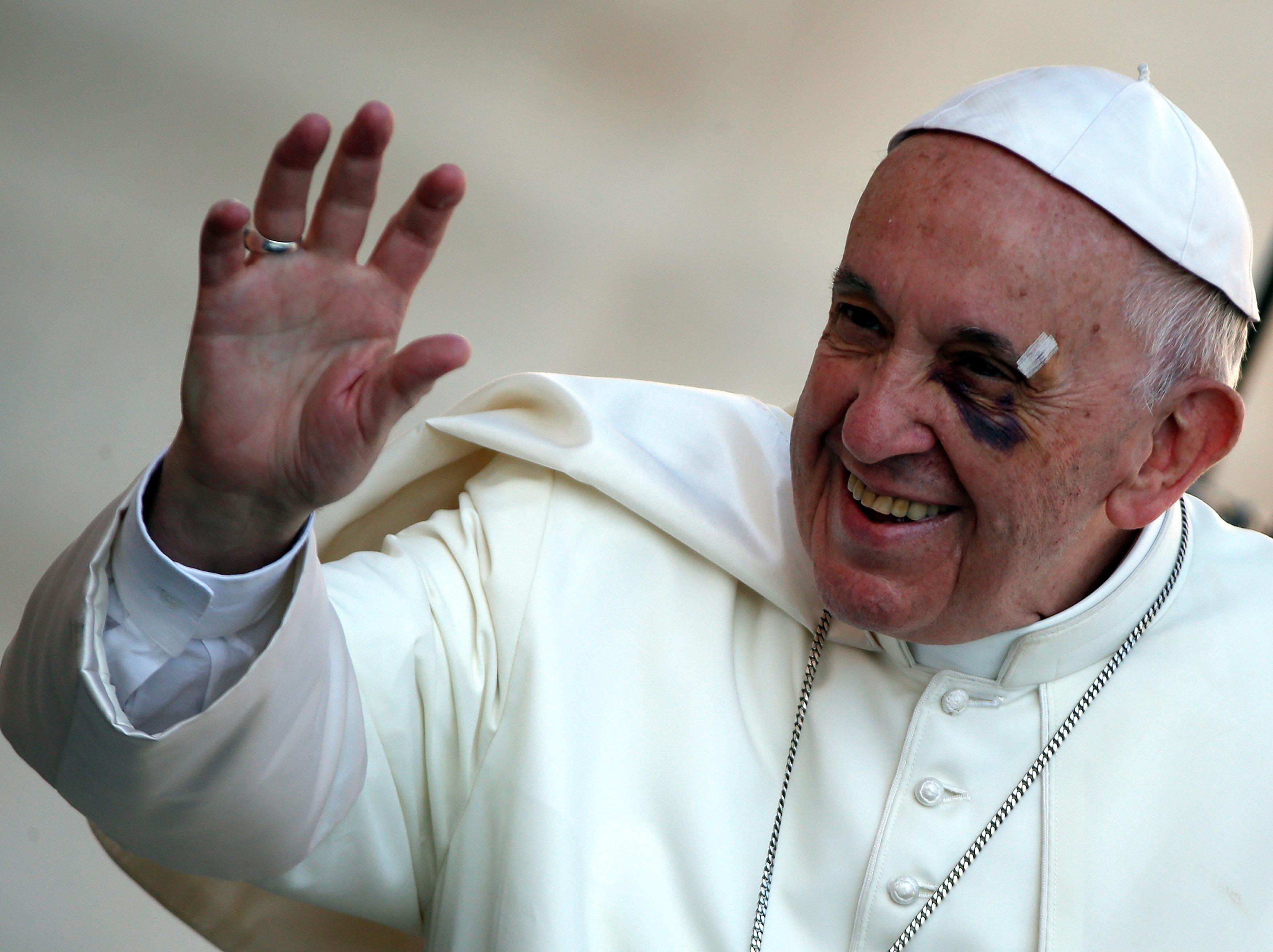 إصابة البابا