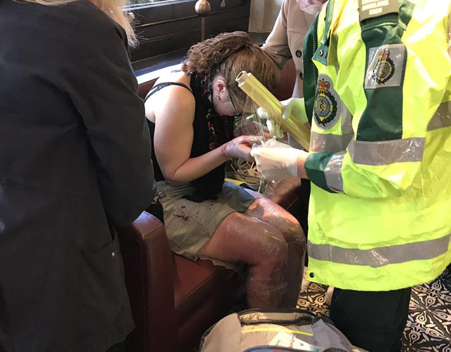 حروق فى جسد فتاة بسبب الانفجار