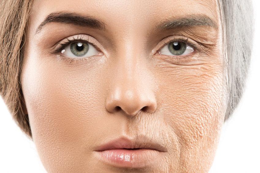 تقدم سن البشرة