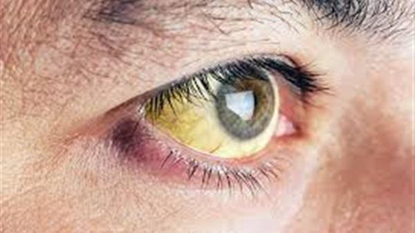 اصفرار بياض العين