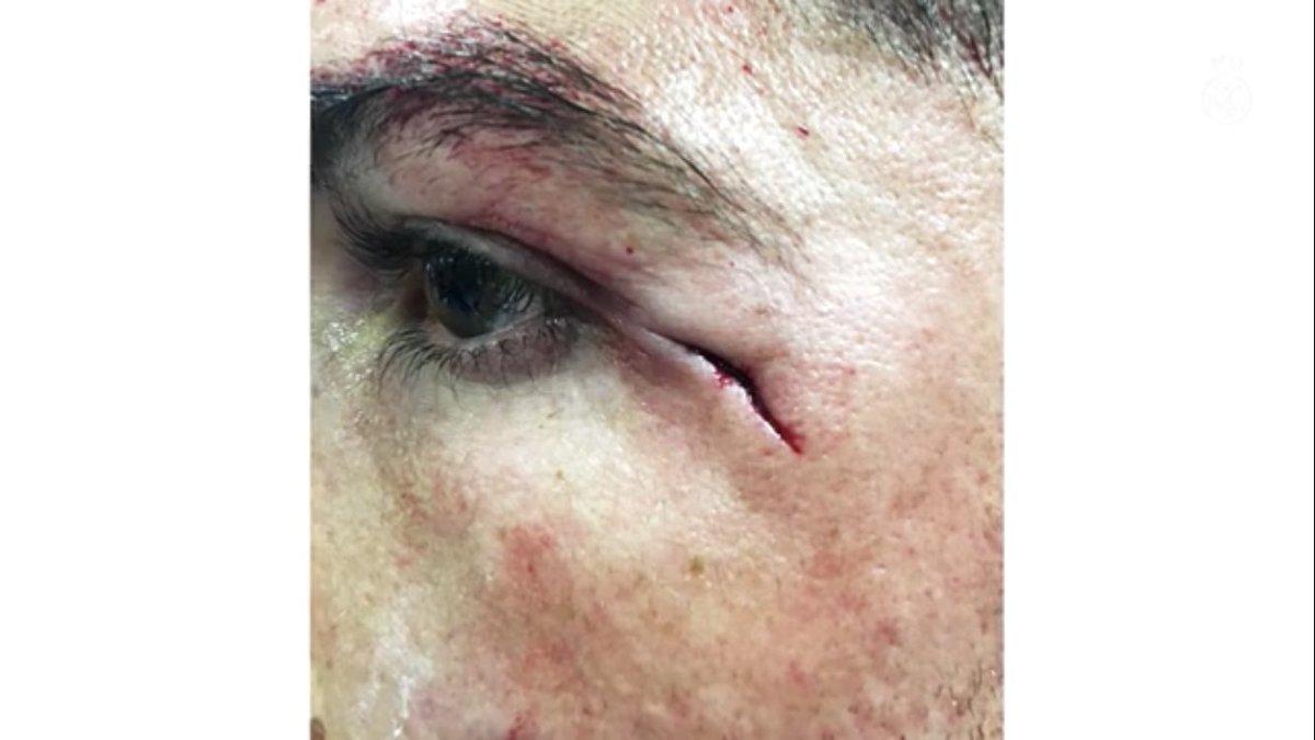 إصابة رونالدو